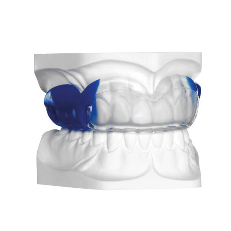 BIOPLAST® XTREME PRO blue, application example, online gallery
