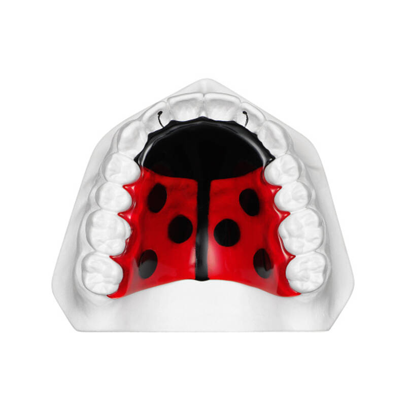 orthodontic plate with beetle, application example, online gallery