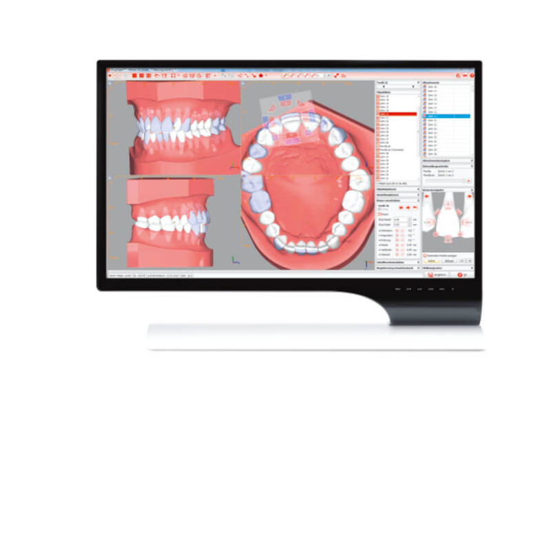 OnyxCeph3™ CA® SMART 3D, software, laboratory version, digital orthdontics, 3D planning, CA® CLEAR ALIGNER, product image, catalogue
