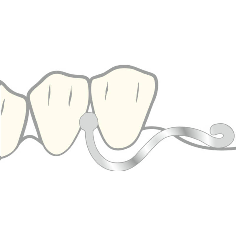 SCHEU anchor, clasps and bars, illustration in situ, dental arch, catalogue